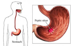 peptic ulcer disease